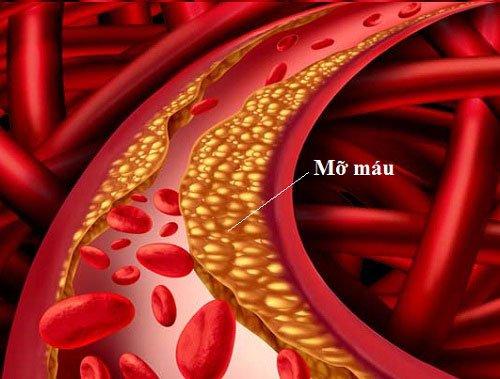 Bệnh mỡ trong máu